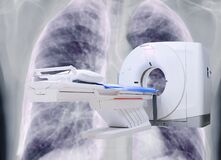 Free Multi Detector CT Scanner  Computed Tomography  On Chest X-ray Background. Royalty Free Stock Photography - 179593657