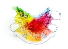 Multicolored en geschitterd orthodontisch toestel voor een kind royalty-vrije stock afbeeldingen