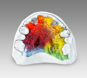 Multicolored and glittered orthodontic appliance for a child. Multicolored and glittered upper orthodontic appliance  with two z-springs, 3 clasps, labial bow Stock Images