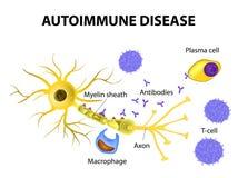 аутоиммунная болезнь Механизмы нейронального повреждения в multipl Стоковые Изображения