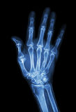 Multiple fracture at index,little finger,metacarpal bone Stock Photos