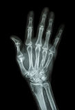 Multiple fracture at index,little finger,metacarpal bone Royalty Free Stock Photo
