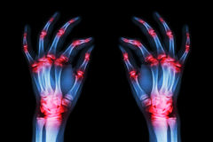 Multiple joint arthritis both adult hands ( Gout , Rheumatoid ) on black background Stock Photography