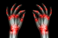 Multiple joint arthritis both adult hands ( Gout , Rheumatoid ) on black background Stock Images