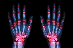 Multiple joint arthritis both hands ( Gout , Rheumatoid ) on black background stock images