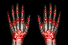 Multiple joint arthritis both hands ( Gout , Rheumatoid ) on black background. Multiple joint arthritis both hands  ( Gout , Rheumatoid ) on black background Royalty Free Stock Image