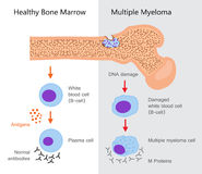Multiple Myeloma Diagram. Vector illustration flat design Royalty Free Stock Photo