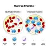 Multiple myeloma. plasma cell myeloma Royalty Free Stock Photography