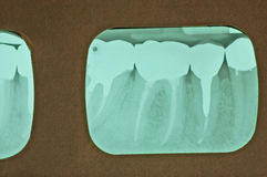 Multiple Root Canals. Periapical x-ray from the mandibular right quadrant, posterior section (lower right teeth in back) showing one premolar and two molars with Royalty Free Stock Image