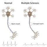 Multiple sclerosis. Neuron structure and action potential patterns, eps8 Royalty Free Stock Photography