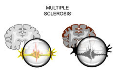 Multiple sclerosis of the brain Royalty Free Stock Photos