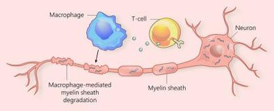 Multiple sclerosis and myelin sheath breakdown royalty free illustration