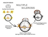 Multiple sclerosis. Neurology Stock Photography