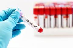 Mumps wirusa test Obrazy Stock