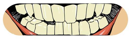 Mun och tänder Royaltyfri Foto
