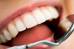Mundüberprüfung Stockfoto