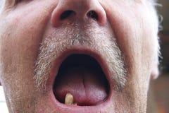 Mund mit den faulen Zähnen stockfotografie