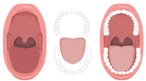 Mundgesundheit, Zähne, üblerer Mundgeruch, Zunge, schlechter Mund, Kehlmandeln - Illustration Lizenzfreies Stockfoto