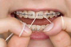 Mundhygiene lizenzfreie stockbilder