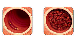 Coronary artery disease royalty free stock photography for Aortic mural thrombus management
