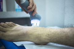 Musclefoot injury strain pain physiotherapy treatment Stock Image