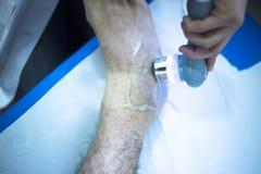Musclefoot skadabelastning smärtar sjukgymnastikbehandling fotografering för bildbyråer