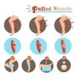 Muscolo tirato Fotografia Stock