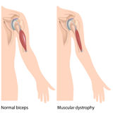 Muscular dystrophy Stock Images