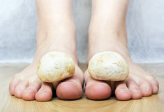 Mushrooms between the toes feet imitating toes fungus Stock Photography