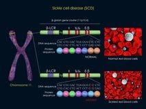 Mutación de la anemia de células falciformes Imágenes de archivo libres de regalías