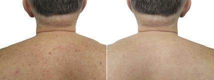 Muttermalpickel auf der schlechten Haut der hinteren Männer vor und nach Behandlungsklinik Stockfotografie