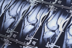 My knee MRI - damage of cross-shaped ligaments Royalty Free Stock Image