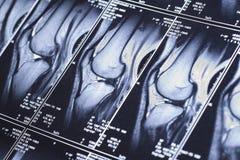 My knee MRI - damage of cross-shaped ligaments Royalty Free Stock Image