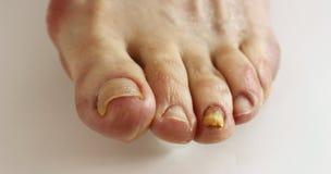 Mycète d'ongle d'orteil images libres de droits