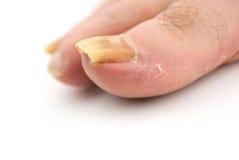 Mycète d'ongle d'orteil photos libres de droits