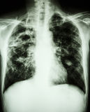 Mycobacterium tuberculosis infection (Pulmonary Tuberculosis) Stock Photo