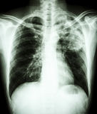 Mycobacterium tuberculosis infection (Pulmonary Tuberculosis). Film chest x-ray show alveolar infiltrate at left upper lung due to Mycobacterium tuberculosis stock photography