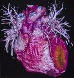 Myocardial infarct, Computed Tomography Royalty Free Stock Image