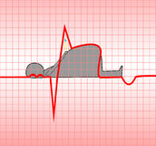 Myocardial infarction. ECG, acute, myocardial, myocardium, illustration, vector, obesity, which attract the death of a man Stock Images