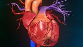 Myocardial infarction. A heart attack is a medical emergency. A heart attack usually occurs when a blood clot blocks blood flow to the heart. Without blood Stock Photos