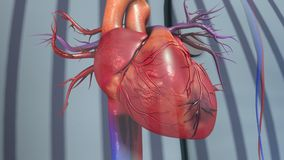Myocardial infarction. A heart attack is a medical emergency. A heart attack usually occurs when a blood clot blocks blood flow to the heart. Without blood Royalty Free Stock Image