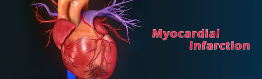 Myocardial infarction. A heart attack is a medical emergency. A heart attack usually occurs when a blood clot blocks blood flow to the heart. Without blood Stock Photography