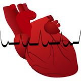 Myocardial infarction Royalty Free Stock Images