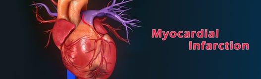 Myokardiale Infarktbildung stockfotografie