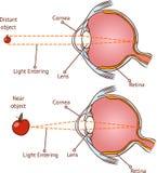 Myopia i normalny wzrok ilustracja wektor