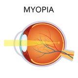 Myopia. Myopia is being short sighted. Stock Image