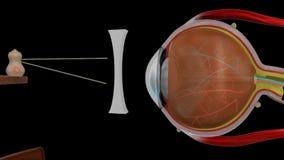 Myopia wklęsły obiektyw ilustracja wektor
