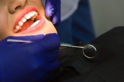 När du ler den nätta kvinnan har hennes tänder som undersöks av tandläkaren i klinik royaltyfria foton