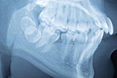 Nära övre filmröntgenstråle av tänder royaltyfri fotografi