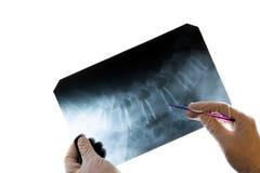 Närbild av doktors händer i handskar, som rymmer en pekare och visar ryggen i bilden Röntgenstråle av de cervikala kotorna royaltyfria foton